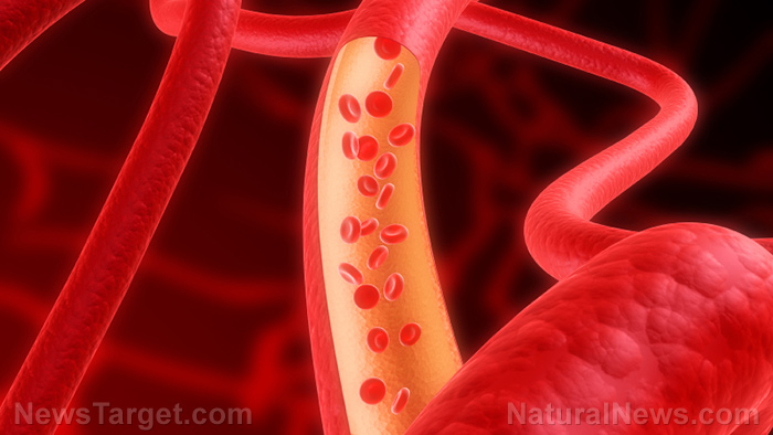 Natural remedies for clean arteries: Prevent cardiovascular disease with these 7 foods