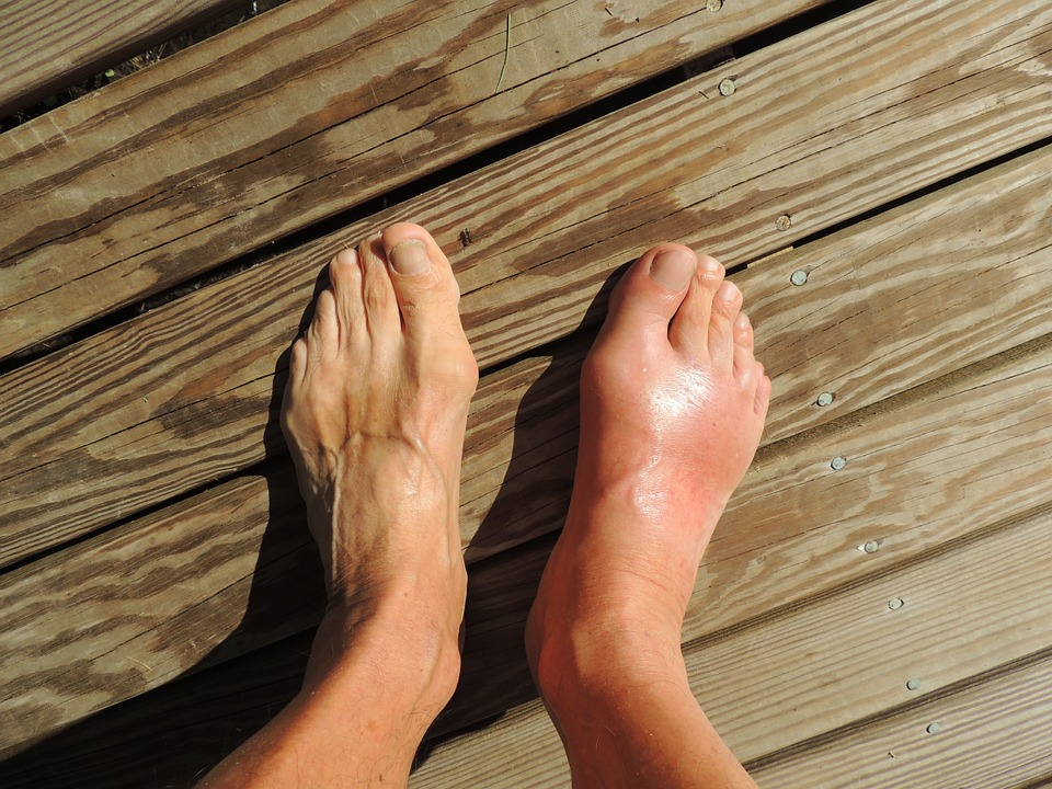 Get natural relief from gout with these 10 home remedies