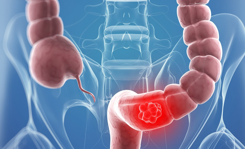 Gut feeling: Bacteria in your gut can tell you if you're at risk of getting colorectal cancer